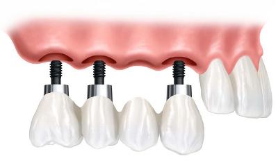 Kivehető fogsor helyett rögzített fogakat szeretnék