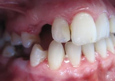 Unu sau mai mulţi dinţi lipsă