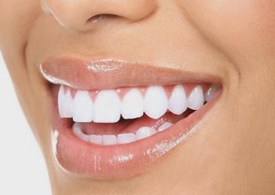 Doriţi dinţi mai albi şi mai frumoşi, estetici