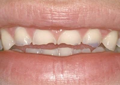 Aveți dinți tociți, uzați?